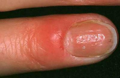 Principales maladies ou troubles des ongles