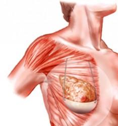 Soutien-gorges implantés